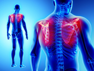 肩甲骨後面の痛